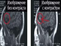 МРТ головы с контрастированием