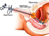 Трансуретральная резекция простаты