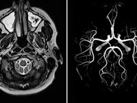 Сделать МРТ головы с контрастом