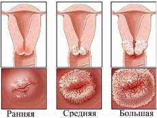 oxiuros y tratamiento enterobius vermicularis fisiologia