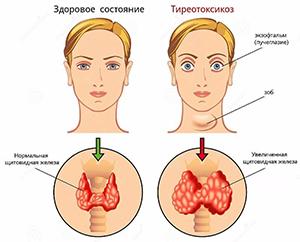 нарушение работы щитовидной железы у девушки
