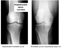 Деформирующий артроз - рентген