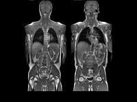 Особенности МРТ всего тела